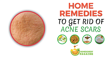 Ultimate Remedies To Get Rid of Acne Scars