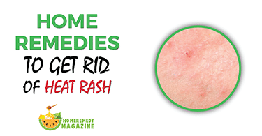 15 Home Remedies To get Rid Of Heat Rash