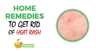 15 Home Remedies To get Rid Of Heat Rash – Home Remedy Mag