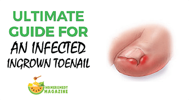 The Ultimate Guide For an Infected Ingrown Toenail – Home Remedy Mag