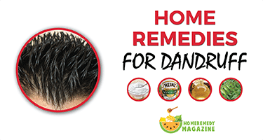 home_remedies_for_dandruff