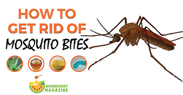 how_to_get_rid_of_mosquito_bites